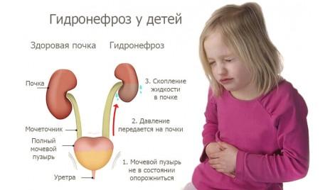 Лапароскопическое лечение гидронефроза у детей